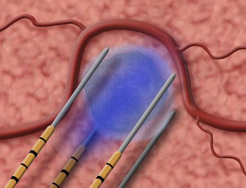 Nanoknife – Elektriske stråler tog kræftknuderne i prostata